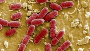 La Organización Mundial de la Salud , divulgó  un listado de 12 familias de bacterias resistentes a los tratamientos actuales